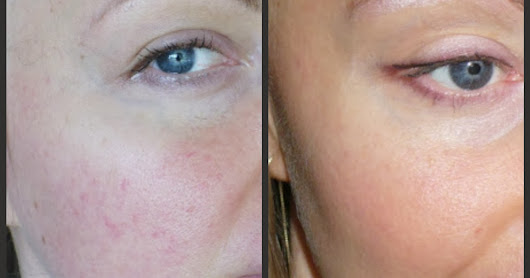 Before & After 7.2PH: AntiAging, 11 Months Detox Lifestyle: Rosacea, broken capillaries, large pores from inflammation in the gut