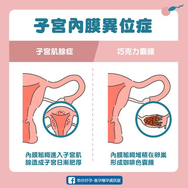 子宮內膜異位症,子宮肌腺症、巧克力囊腫