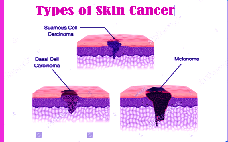 Skin Cancer Types Symptoms Diagnosis Treatment Prevent Tips