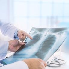 Are Mesothelioma Payments Taxable