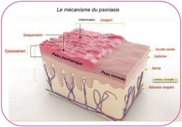 Le psoriasis, qu'est-ce que c'est ? Traitement psoriasis