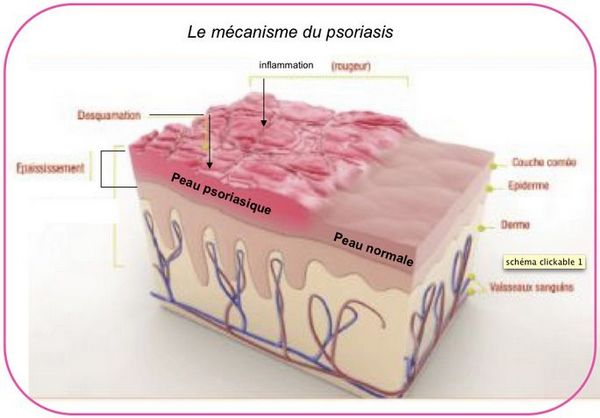 Psoriasis : plaques rouges à certains endroits du corps