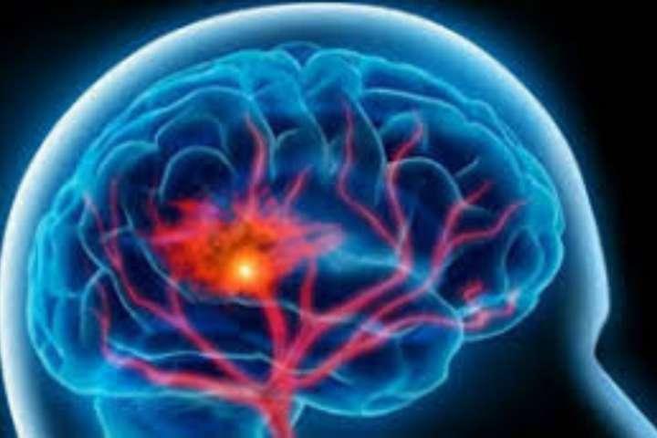Tips dan Cara Menyembuhkan Penyakit Ataksia