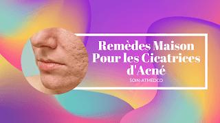 Top 15 solutions pour les cicatrices d'acné fait maison