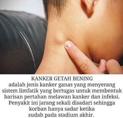 penyebab kanker getah bening pada anak anak