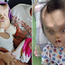 Baby left with devil horns after undergoing surgery