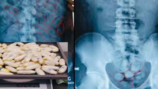 عاجل...الفحص بالأشعة يكشف عن وجود 4 كلغ و750 غراما ملفوفًا داخل أمعاء 6 إيفواريين تم القبض عليهم بمطار محمد الخامس