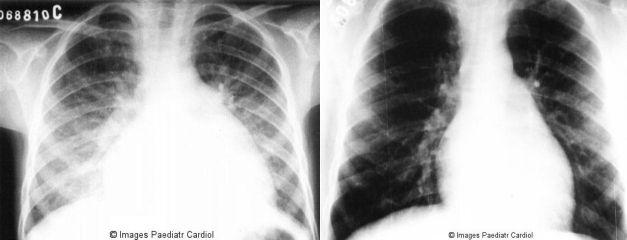 آشعة X لطفل حمى روماتيزمية