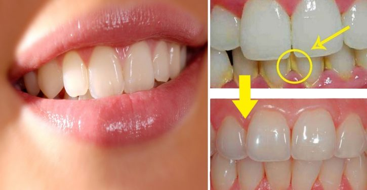 Remove All Tartar From Your Teeth With This Natural Mix! It's Fast And Easy!