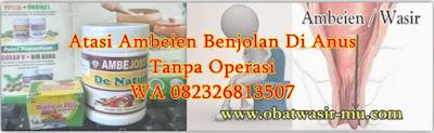 Jual Obat Wasir (Benjolan Anus) Yang Ampuh Di Indragiri Hulu (WA 082326813507)