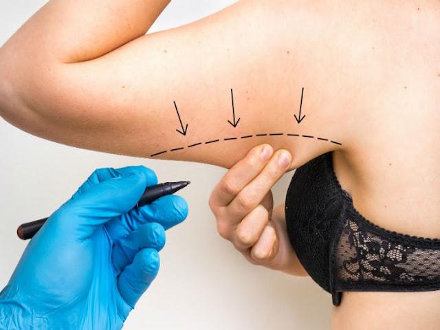 Brachioplastie: un véritable lifting des bras