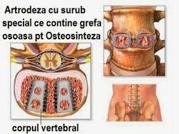 Tratament pentru hernie de disc ibuprofen
