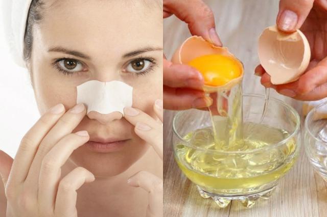 Cara Menghilangkan Komedo Dengan Masker Putih Telur dan Tisu