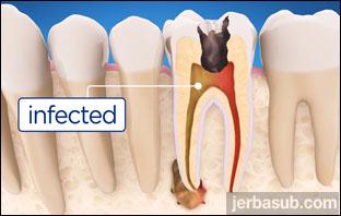 اخصائي علاج جذور الاسنان بالرياض