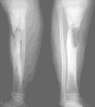 Foto ilustrasi pada soal UKMPPD (uji kompetensi mahasiswa program profesi dokter indonesia) Anak laki-laki 6 tahun datang dengan keluhan nyeri tungkai kanan bawah. Keluar nanah sejak 6 bulan dari tungkai kanan. Riwayat fraktur tulang 1/3 tengah tungkai kanan bawah tapi tidak diobati. Dari foto X-Ray didapatkan gambaran sebagai berikut, radiologis, ronsen, radioopaque, radioluscen, luscen, lusen, opaque. opak