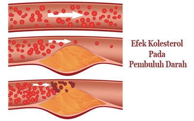 efek kolesterol pada pembuluh darah