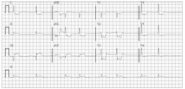 Inferior Wall MI with RV infarction Slow atrial fibrillation