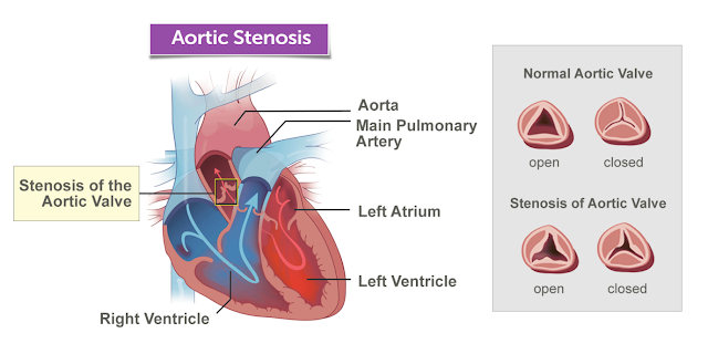 Aortic Stenosis: Diagnosis And Available Treatments