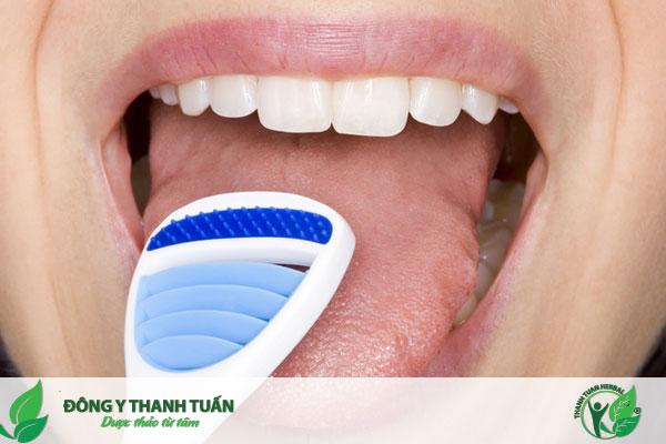 Làm gì khi bị hôi miệng - dùng đồ cạo lưỡi vệ sinh