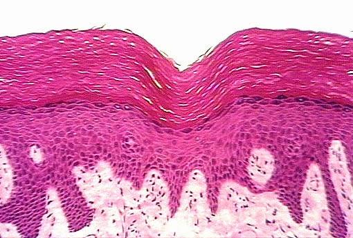 MCQ on Histology Test - 4 (Epithelium) - Medplexus