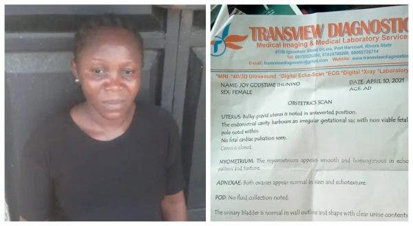 Woman Loses her Pregnancy after she was beaten by Police in Rivers state