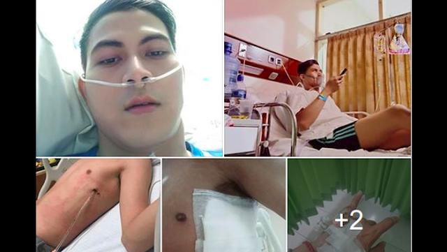 Viral Cerita 'Abang None', Paru-parunya Kolaps karena Rokok