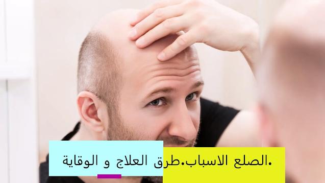 اسباب تساقط الشعر عند الرجال وطرق مجربة لعلاجه