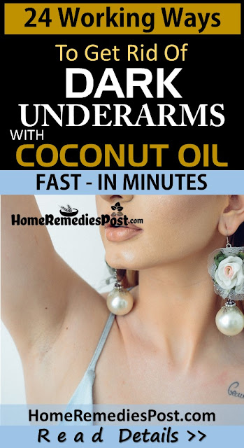 Coconut Oil For Dark Underarms, How To Use Coconut Oil For Dark Underarms, How To Get Rid Of Dark Underarms, Home Remedies For Dark Underarms, Dark Underarms Home Remedies, Lighten Dark Underarms Fast, Whiten Dark Underarms, Dark Underarms Treatment, Lighten Dark Underarms, How To Treat Dark Underarms, Dark Underarms Remedies, Remedies For Dark Underarms, Treatment For Dark Underarms, Best Dark Underarms Treatment, How To Get Rid Of Dark Underarms Fast,