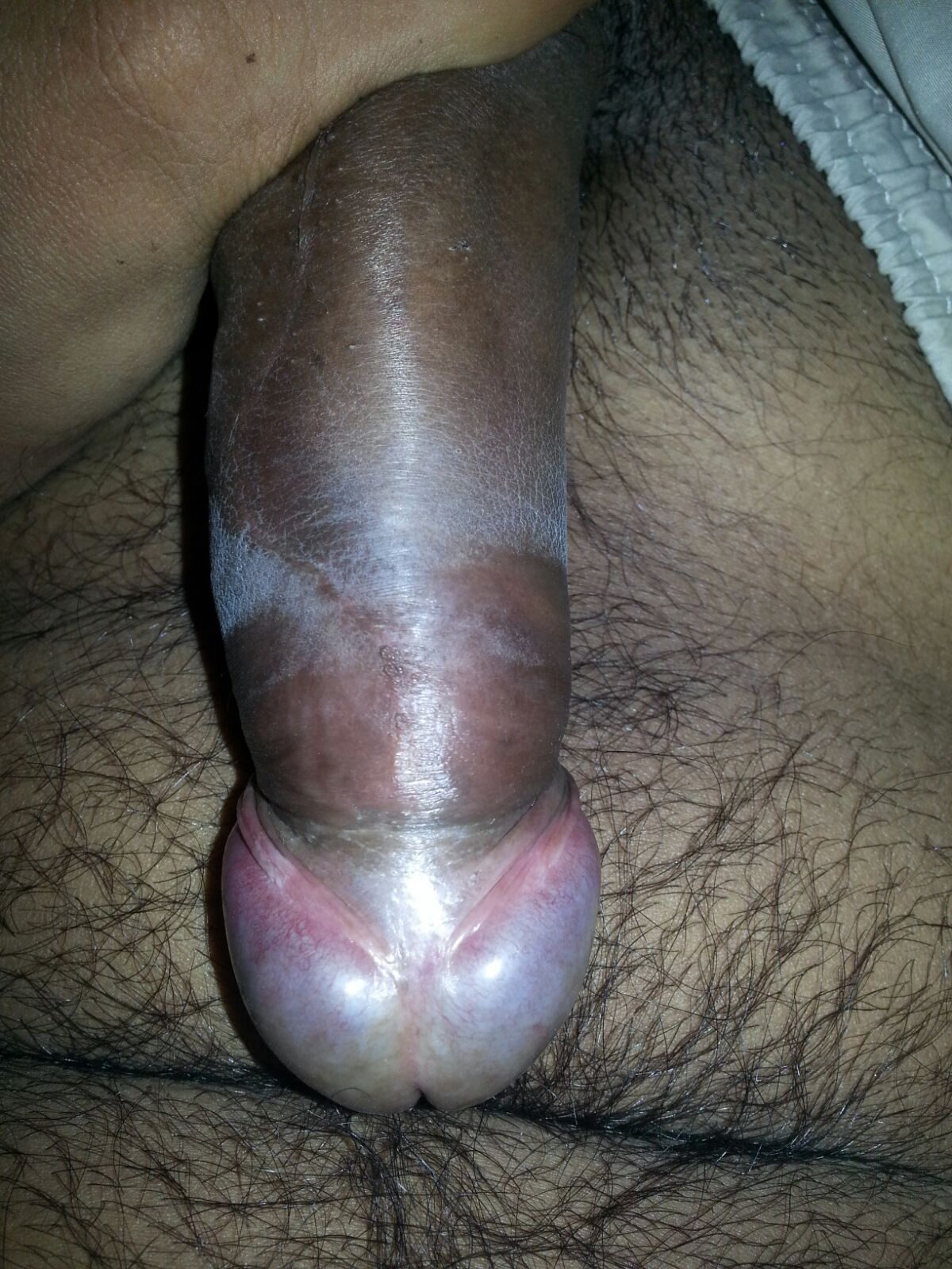 Phimosis Porn  Wwwfreee-Pornocom-9902