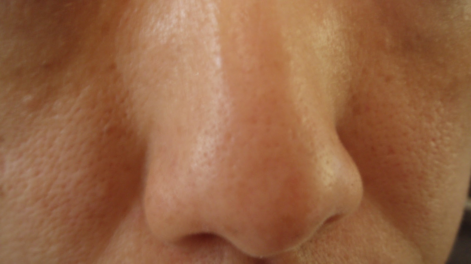large pores on nose - photo #9