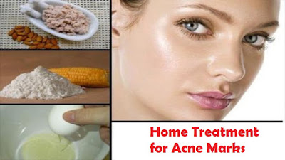 Home Treatment for Acne Marks