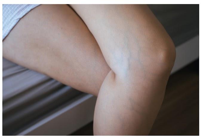 varicose vein treatment and symptoms. Starglamours