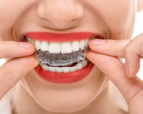 invisalign aligners better than braces advantages