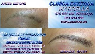 micropigmentación Almeria  Aqui usted puede aprender mucho más aclaración sobre: Micropigmentación En Almeria,