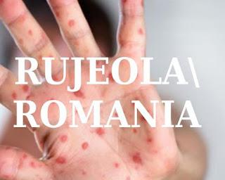 stiri noi epidemie rujeola romania 2020