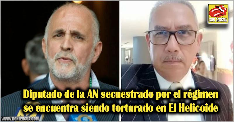 Diputado de la AN secuestrado por el régimen se encuentra siendo torturado en El Helicoide