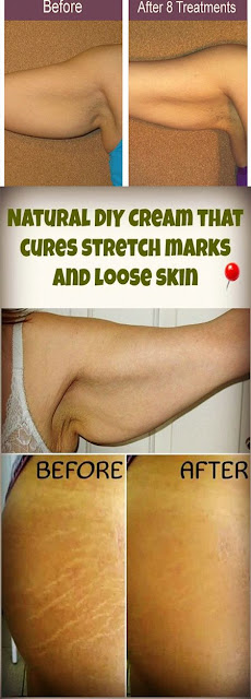 Natural DIY Cream that cures stretch marks and loose skin
