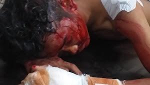 Geng Acong Belagu dan Geng BBF Saling Bertikai, Satu Orang Terluka Parah