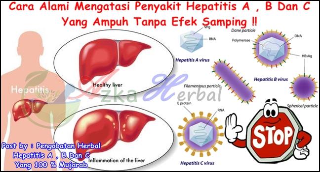 Solusi Atasi Penyakit Liver: Pengobatan Herbal Hepatitis A , B Dan ...