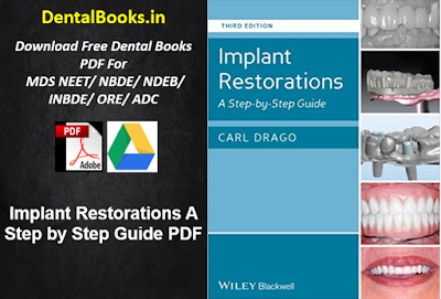 Implant Restorations A Step by Step Guide PDF