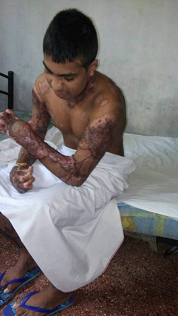 girlfriend set boyfriend on fire with another boyfriend in biyagama