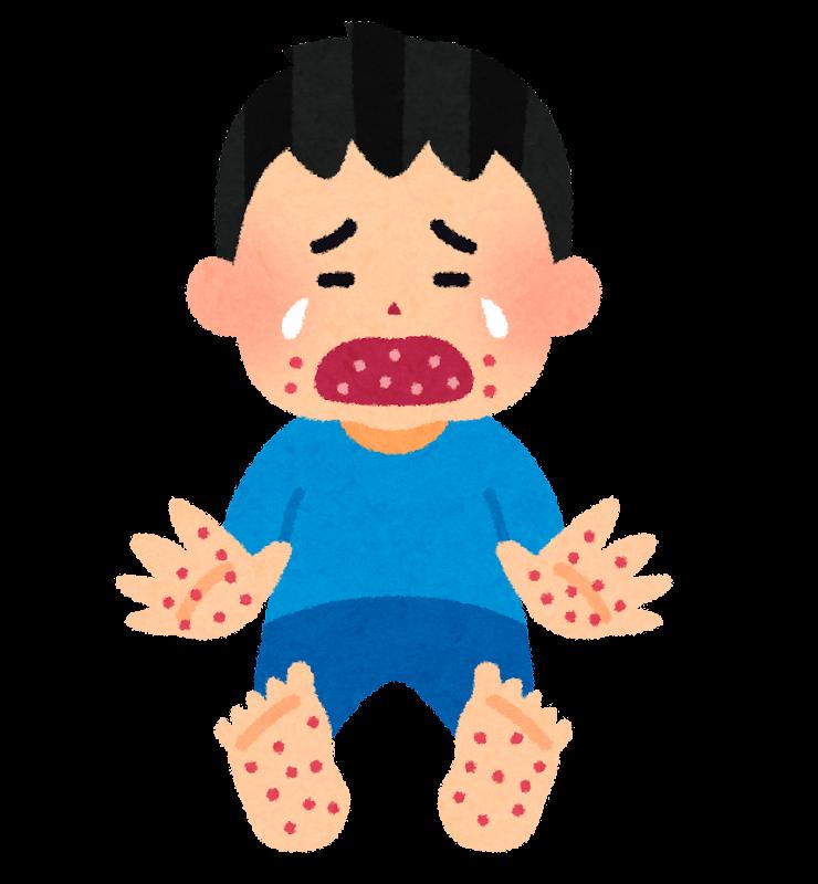 「手足口病 イラスト」の画像検索結果