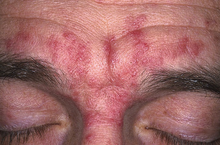 Red Rash Above Eyebrow Imagenesmy