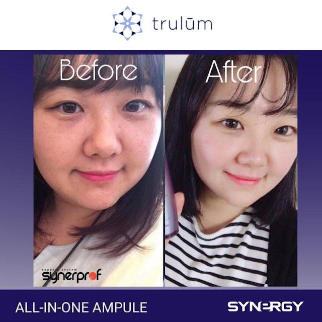 Jual Serum Penghilang Keriput Trulum Skincare Pekalongan Jawa Tengah