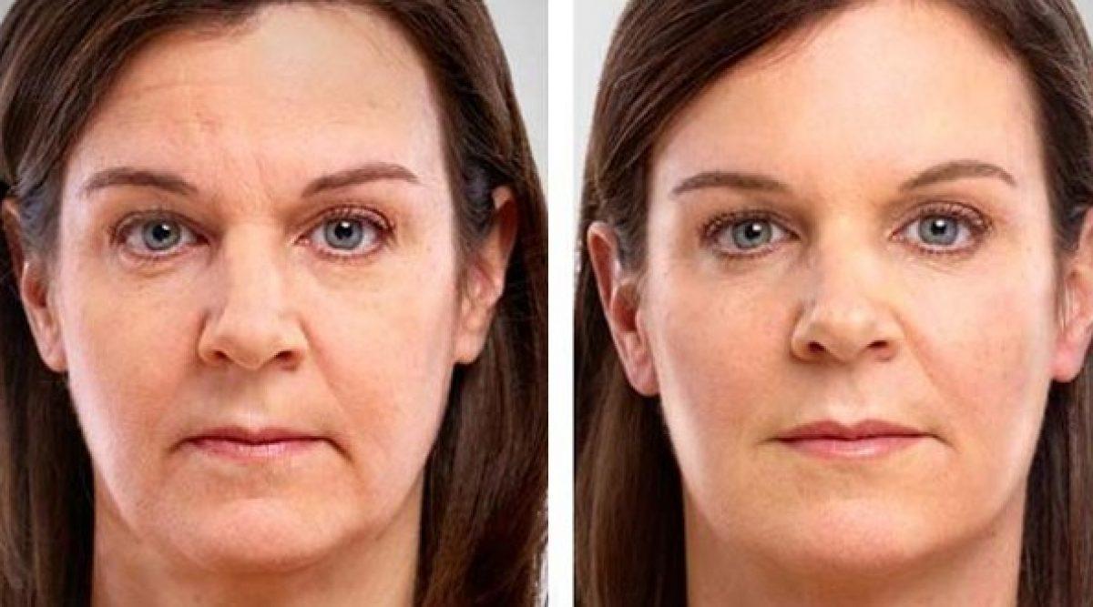 Crema antiarrugas casera que da resultados rápidamente