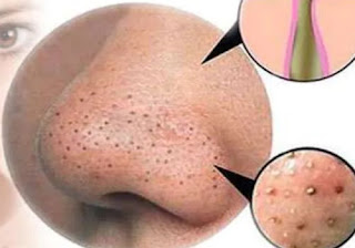 Don't Squeeze the blackhead