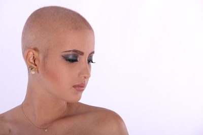 Chemo Hair Loss: Why Does Chemotherapy Make You Lose Your Hair