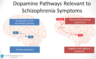 Finding the cause of schizophrenia