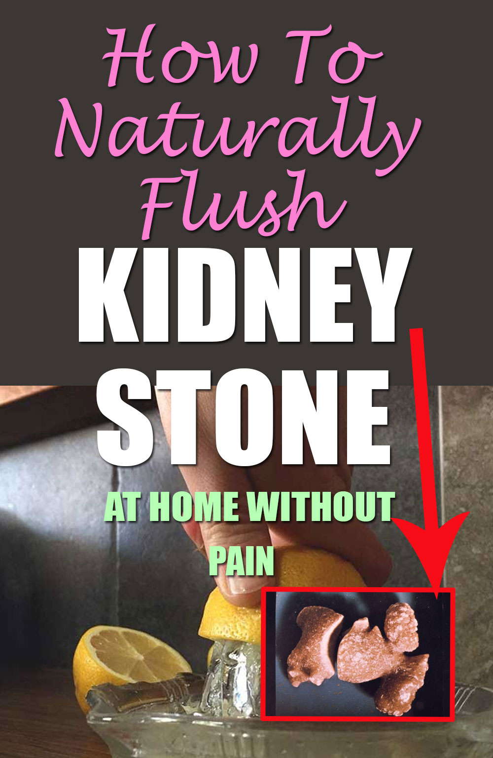 How To Naturally Flush Kidney Stones
