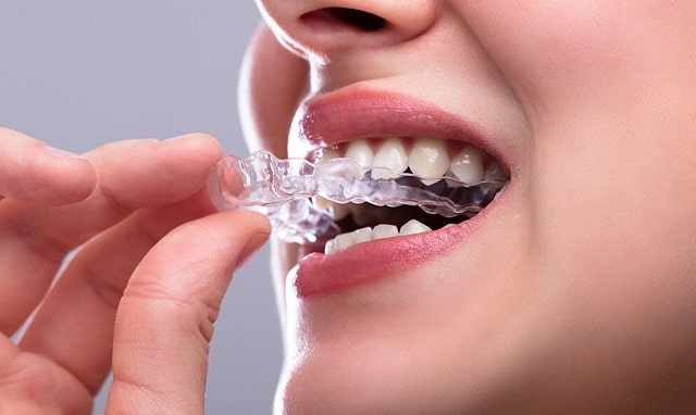 night guard importance bruxism mouthpiece teeth grinding jaw clenching